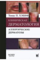 Клиническая дерматология. Аллергические дерматозы.