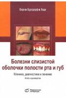 Болезни слизистой оболочки полости рта и губ.Клиника,диагностика и лечение.Атлас и руководство.