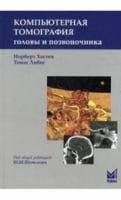 Компьютерная томография головы и позвоночника 2-е изд.