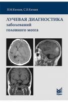 Променева діагностика захворювань головного мозку