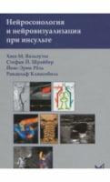 Нейросонология и нейровизуализация при инсульте