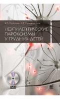 Неэпилептические пароксизмы у грудных детей