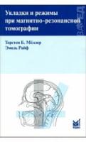 Укладання і режими при магнітно-резонанской томографії 2-е вид