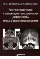 Рентгенографическая и компьютерно-томографическая диагностика острых и хронических синуситов