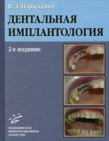 Дентальная имплантология (2-е изд.) (чёрно-белые картинки)
