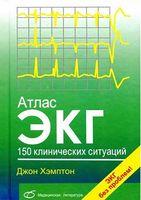 Атлас ЕКГ. 150 клінічних ситуацій