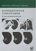 Комп'ютерна томографія в пульмонології