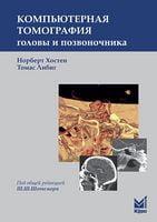 Комп'ютерна томографія голови і хребта 2-е изд.