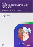 Атлас секционной анатомии человека на примере КТ- и МРТ- срезов в 3-х томах. Том 2. Внутренние органы