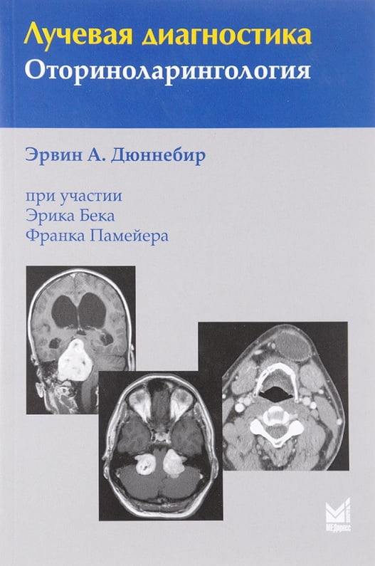 Лучевая диагностика. Оториноларингология 3-е изд.